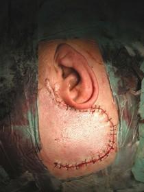 chirurgia base cranica