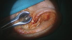 chirurgia-dell-otosclerosi